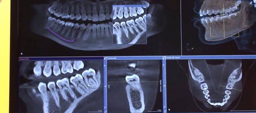 Kragujevac: Snimanje zuba u 3D